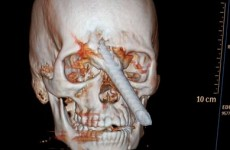 Brazilian worker survives bar through skull