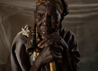 An elderly woman waits to be treated in the Goal clinic in Balliet,a village along the Sobat River in the Greater Upper Nile region of northeastern South Sudan, Africa.